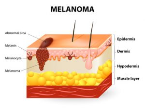 melanoma risk is not caused by sun exposure