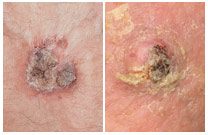 A common skin cancer