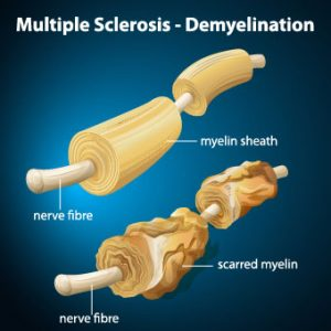 Photo of multiple sclerosis