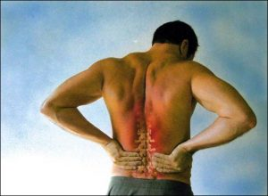 Sun exposure low-back pain