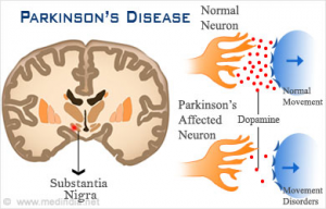 Parkinson's prevented by sun exposure