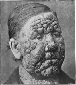 Sunlight may prevent leprosy