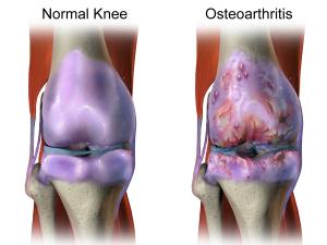 Sunshine may prevent osteoarthritis