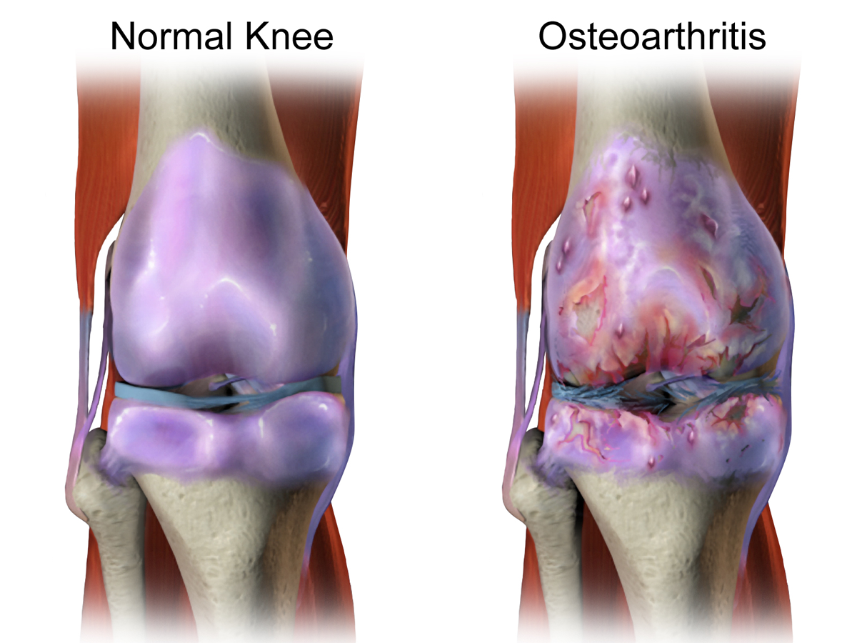 Osteoarthritis Bilateral Knees Icd 10