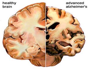 Get your sun, don;t shrink your brain with Alzheimer's